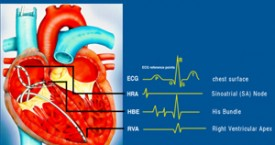 Premature ventricular contractions (PVCs) - Doctors and ...
