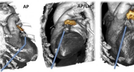 CT scan of a heart that is done prior tot he procedure. The blue is how the LARIAT is deployed